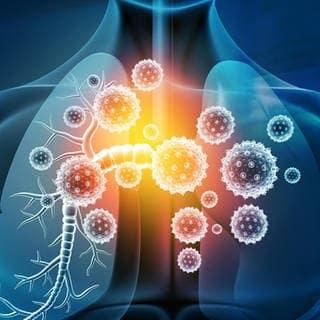 Asthma Risikogruppe (Foto: Adobe Stock/Rasi)