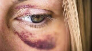 Gewalt gegen Frauen (Foto: dpa)
